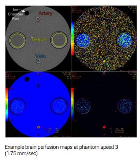 brain-perfusion.jpg